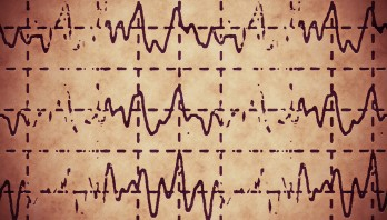 brain wave on electroencephalogram EEG for epilepsy, illustration grunge background